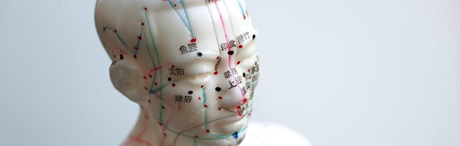 acupuntura cabecera